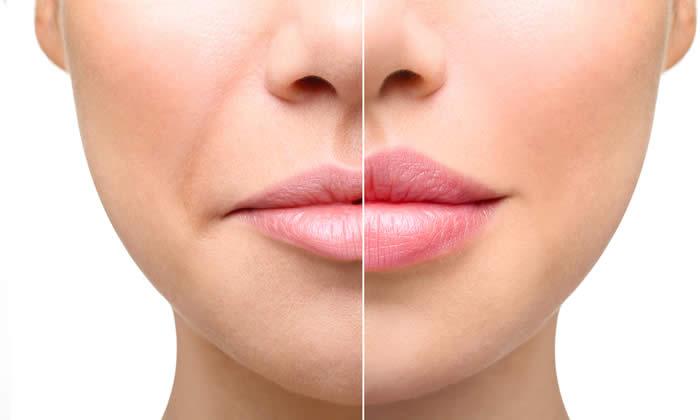 Filler Labbra: ridai volume e giovinezza alle tue labbra